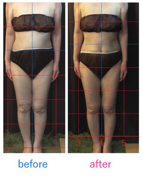 内臓美体質改善ダイエット体験例